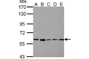 anti-Pyruvate Kinase, Liver and RBC (PKLR) (AA 254-574) antibody