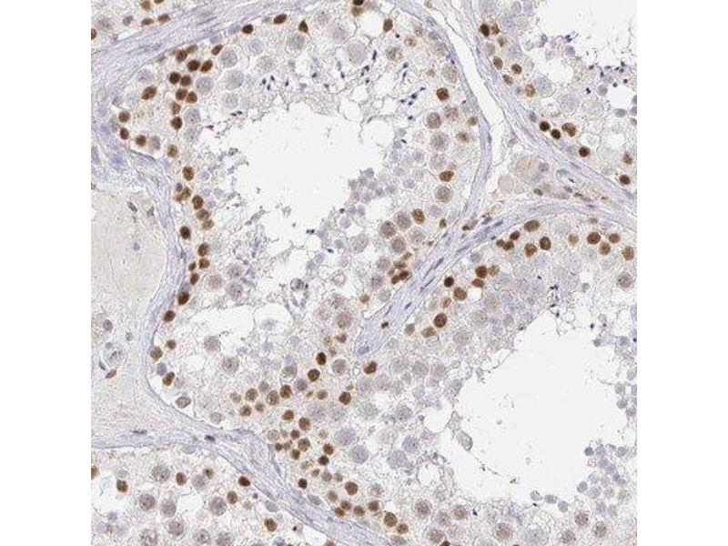Immunohistochemistry (IHC) image for anti-CoREST 抗体 (REST Corepressor 1) (ABIN4349753)