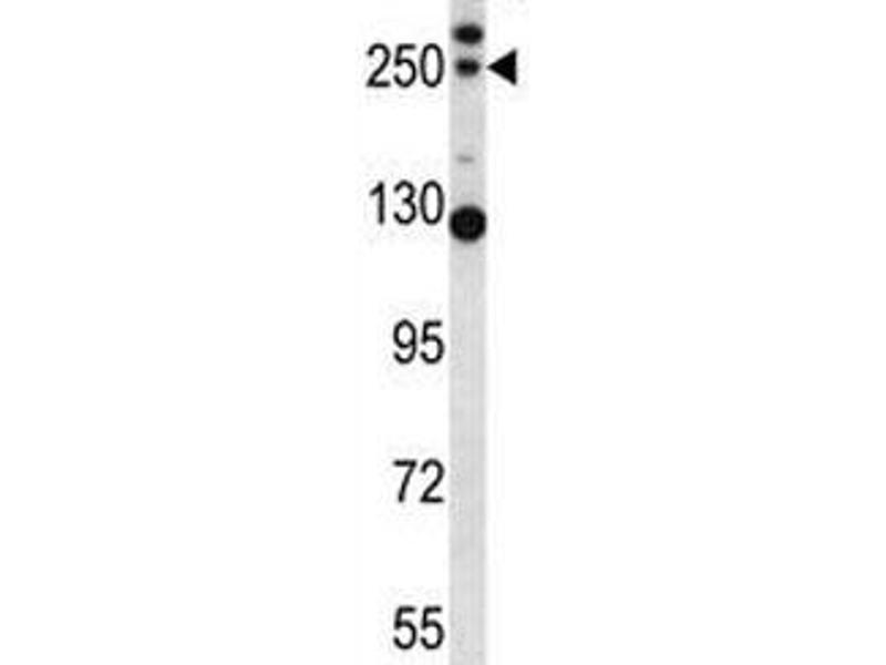 Western Blotting (WB) image for anti-Complement Component 4B (C4B) (AA 655-684) antibody (ABIN3030240)