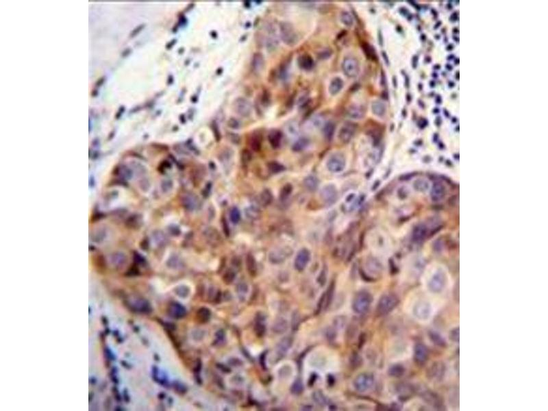 Immunohistochemistry (Paraffin-embedded Sections) (IHC (p)) image for anti-Signal Peptide, CUB Domain, EGF-Like 2 (SCUBE2) (AA 258-288), (Middle Region) antibody (ABIN954694)