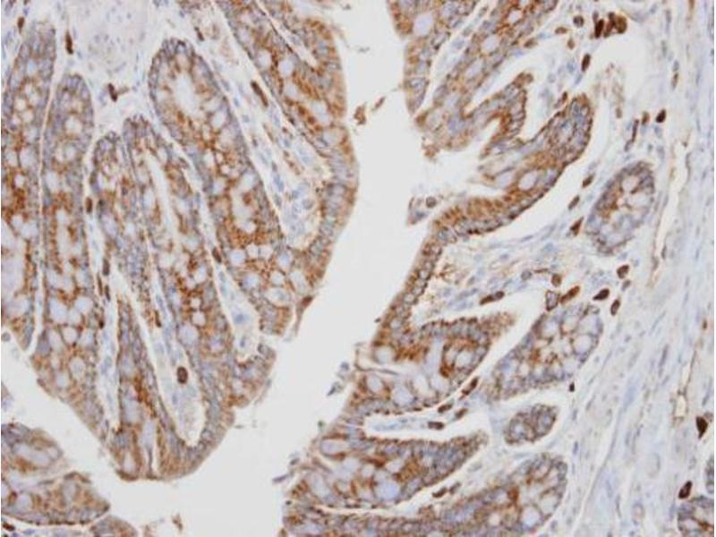 Immunohistochemistry (IHC) image for anti-PRKACA antibody (Protein Kinase A, alpha) (Center) (ABIN2855997)