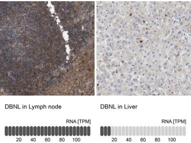 Immunohistochemistry (Paraffin-embedded Sections) (IHC (p)) image for anti-Drebrin-Like (DBNL) antibody (ABIN4317498)