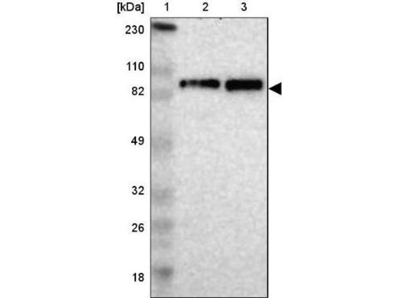 Western Blotting (WB) image for anti-Kinesin Heavy Chain Member 2A (KIF2A) antibody (ABIN4328837)