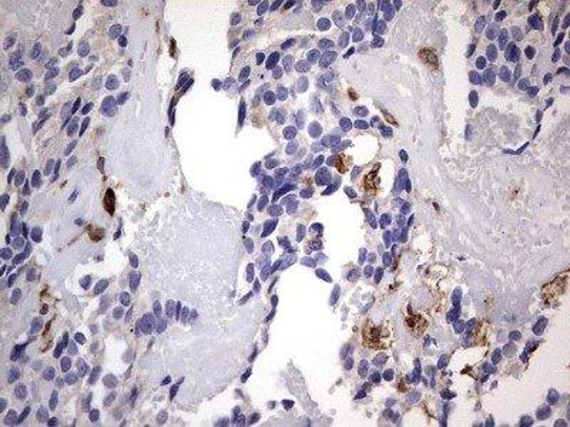 Immunohistochemistry (IHC) image for anti-CD68 Molecule (CD68) antibody (ABIN4261732)