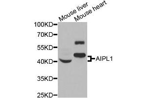 Image no. 2 for anti-Aryl Hydrocarbon Receptor Interacting Protein-Like 1 (AIPL1) antibody (ABIN2560995)