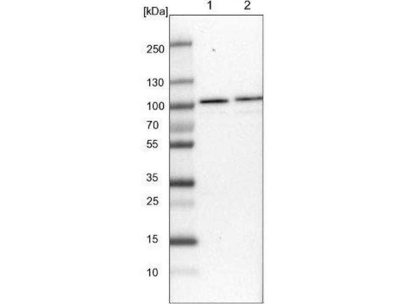 Western Blotting (WB) image for anti-RNA Binding Motif Protein 28 (RBM28) antibody (ABIN4349609)