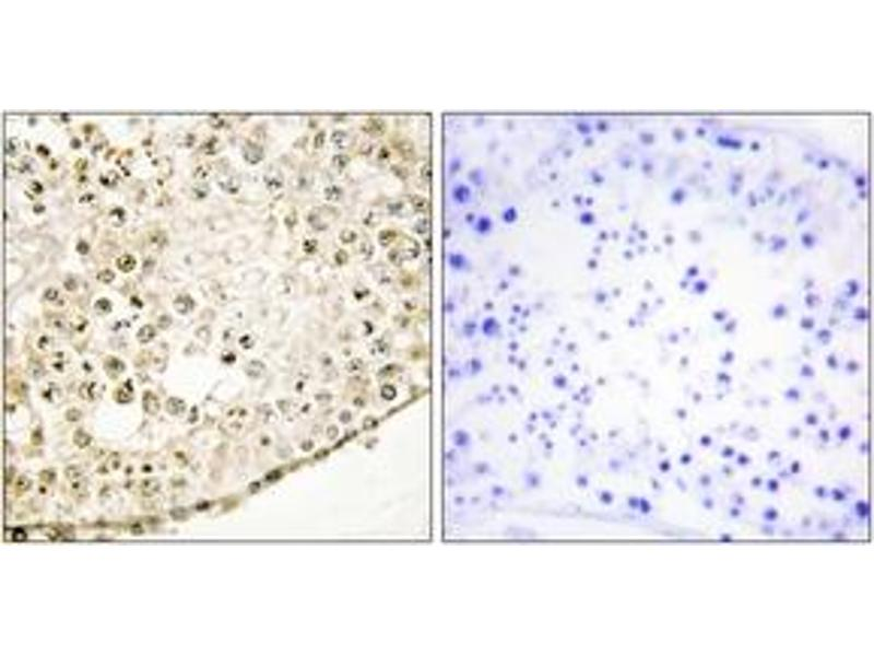 Immunohistochemistry (IHC) image for anti-SPZ1 antibody (Spermatogenic Leucine Zipper 1) (ABIN1534099)