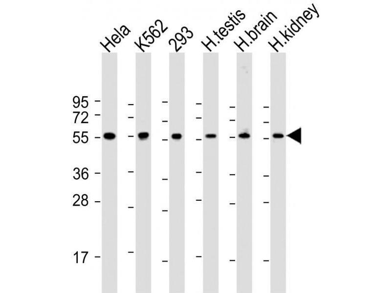 Western Blotting (WB) image for anti-Preferentially Expressed Antigen in Melanoma (PRAME) (AA 476-502), (C-Term) antibody (ABIN390677)
