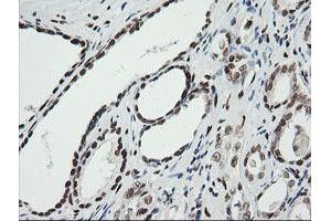 Image no. 9 for anti-Zinc Finger and SCAN Domain Containing 18 (ZSCAN18) antibody (ABIN1501858)