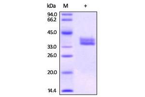 SDS-PAGE (SDS) image for Glycoprotein A33 (Transmembrane) (GPA33) (Active) protein (Biotin,His tag) (ABIN2444135)