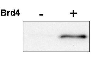 Image no. 1 for anti-Cyclin-Dependent Kinase 9 (CDK9) (pThr29) antibody (ABIN233827)