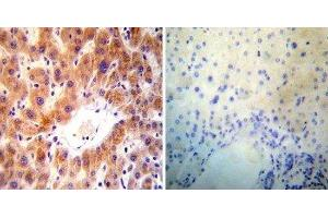 Immunohistochemistry (Paraffin-embedded Sections) (IHC (p)) image for anti-ADP-Ribosylation Factor 1 (ARF1) antibody (ABIN152664)