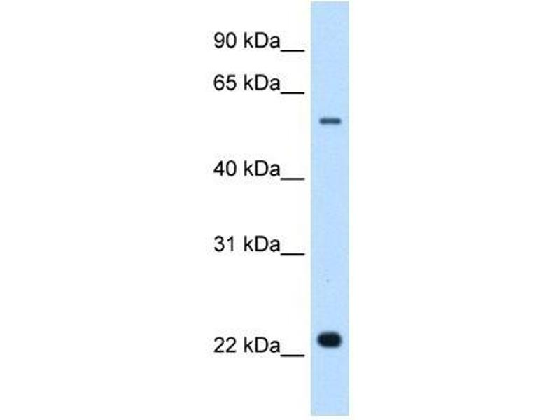 Image no. 3 for anti-Solute Carrier Family 17 (Acidic Sugar Transporter), Member 5 (SLC17A5) antibody (ABIN635267)