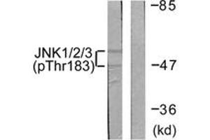 Western Blotting (WB) image for anti-JNK antibody (Mitogen-Activated Protein Kinase 8) (pThr183) (ABIN1531332)