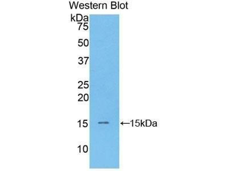 Western Blotting (WB) image for anti-Brain Natriuretic Peptide (BNP) (AA 27-121) antibody (ABIN1077873)