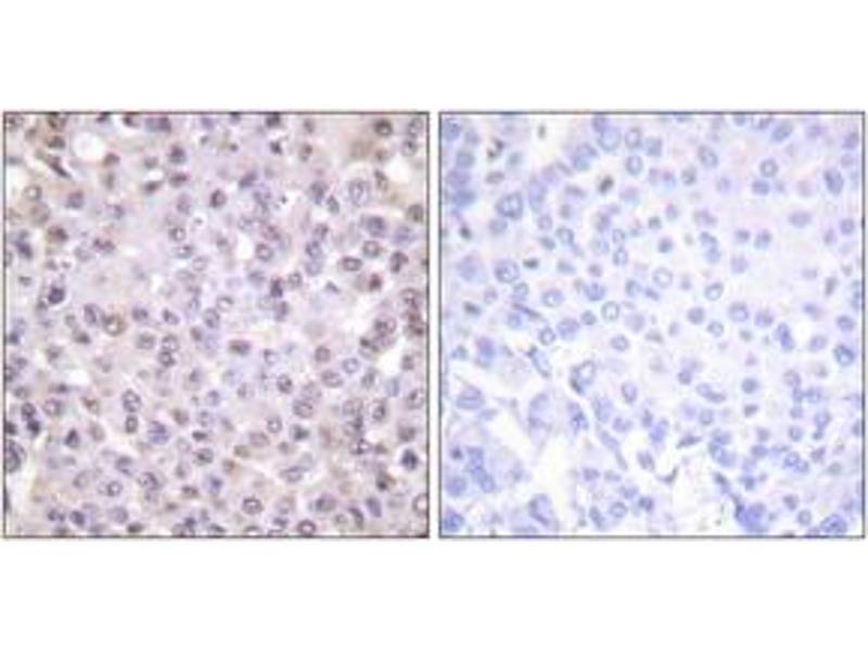Immunohistochemistry (IHC) image for anti-Nuclear Receptor Co-Repressor 1 (NCOR1) (AA 51-100) antibody (ABIN1533429)