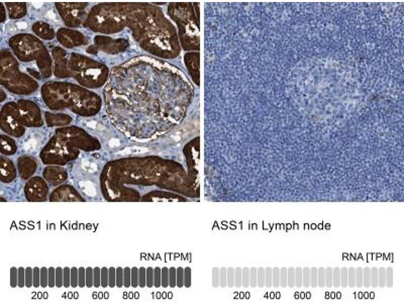 Immunohistochemistry (Paraffin-embedded Sections) (IHC (p)) image for anti-Argininosuccinate Synthase 1 (ASS1) antibody (ABIN4281472)