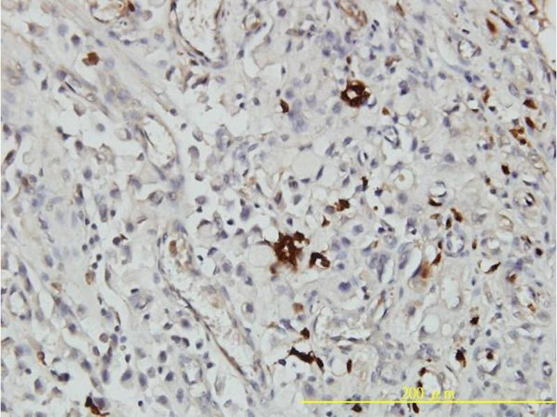 Immunostaining (ISt) image for anti-Orosomucoid 1 (ORM1) (AA 18-201), (full length) antibody (ABIN562078)