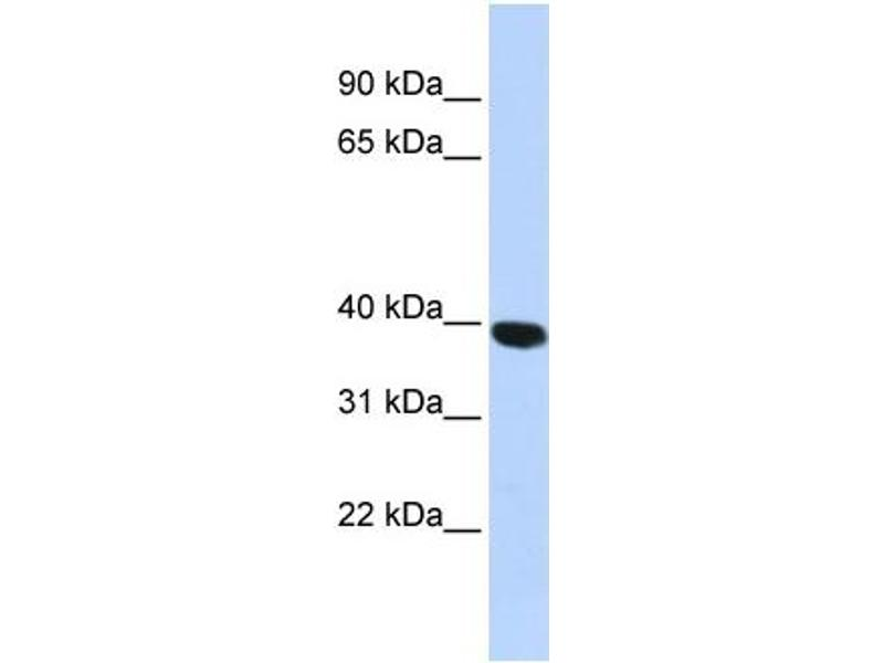 Image no. 4 for anti-Hyaluronidase-1 (HYAL1) (N-Term) antibody (ABIN2784342)