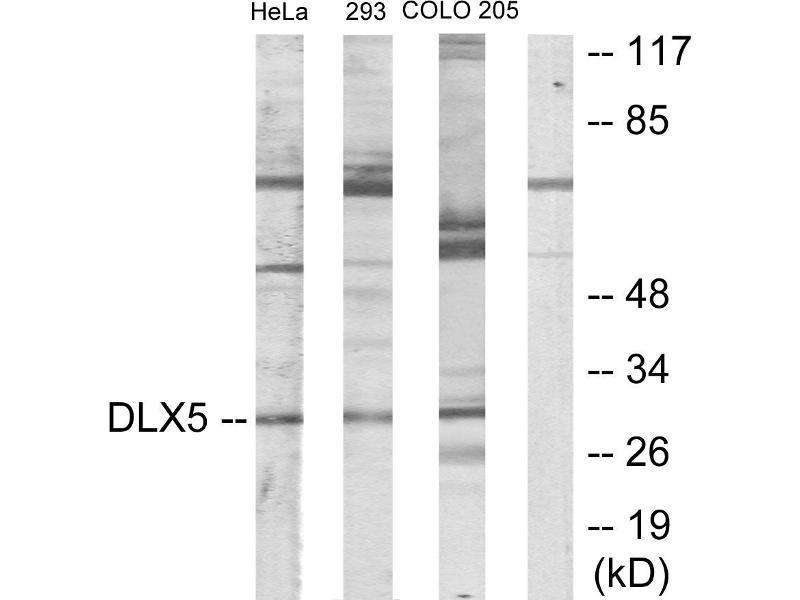 Image no. 2 for anti-Distal-Less Homeobox 5 (DLX5) antibody (ABIN1576089)