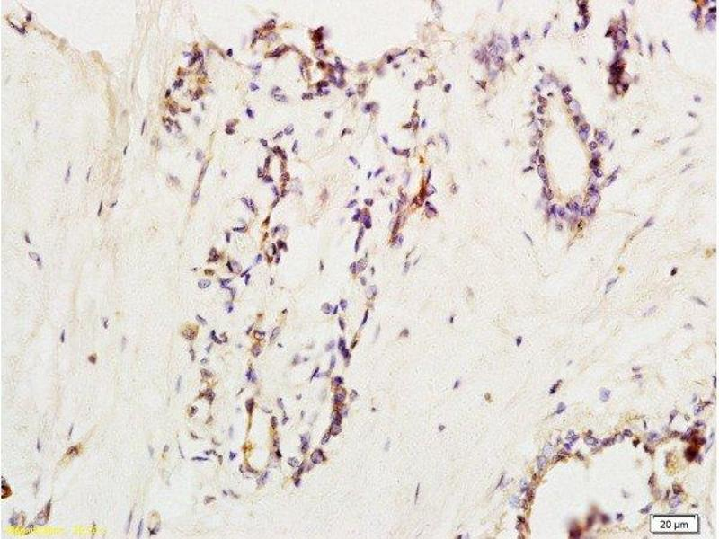Immunohistochemistry (Paraffin-embedded Sections) (IHC (p)) image for anti-Vascular Cell Adhesion Molecule 1 (VCAM1) (AA 721-739) antibody (ABIN729838)