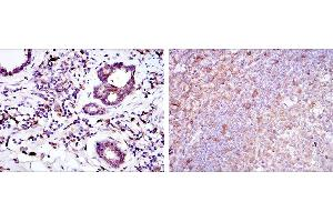 Immunohistochemistry (IHC) image for anti-BH3 Interacting Domain Death Agonist (BID) antibody (ABIN968979)