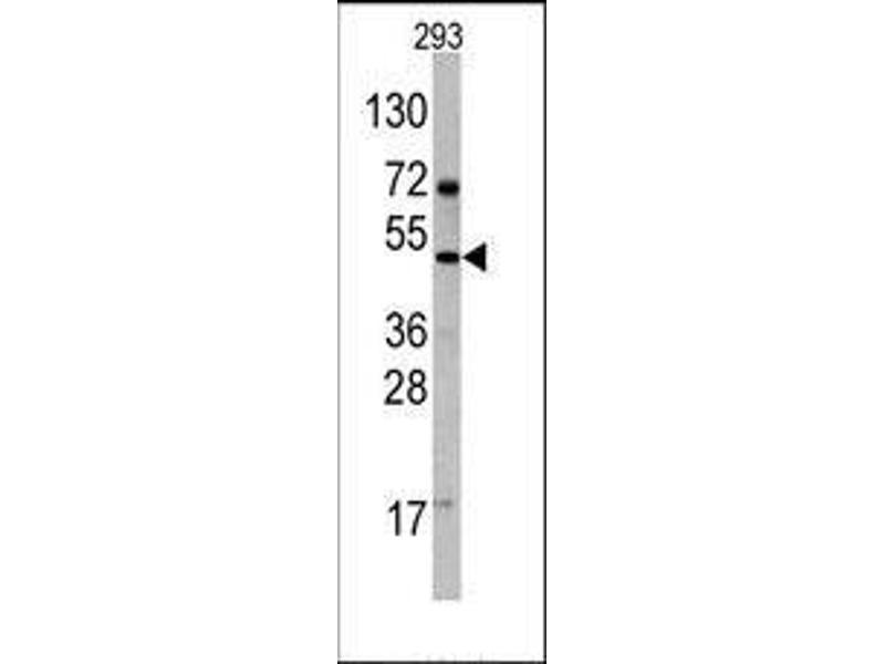 Western Blotting (WB) image for anti-C-Fos Induced Growth Factor (Vascular Endothelial Growth Factor D) (Figf) (C-Term) antibody (ABIN358813)