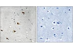 Immunohistochemistry (IHC) image for anti-Transcription Factor 3 (E2A Immunoglobulin Enhancer Binding Factors E12/E47) (TCF3) (AA 321-370), (pThr355) antibody (ABIN1532141)