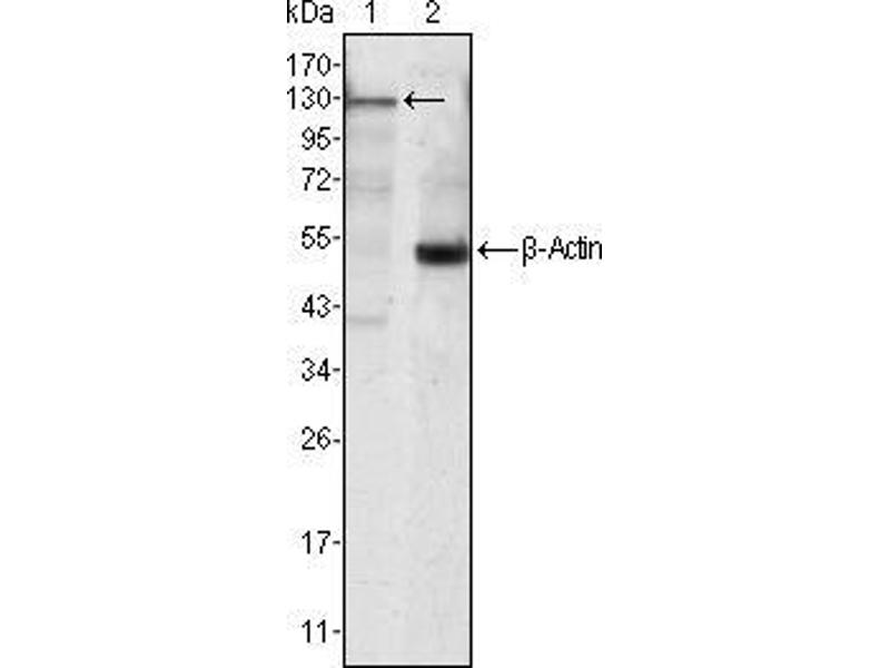 Western Blotting (WB) image for anti-Tyrosine-Protein Kinase JAK3 (JAK3) antibody (ABIN969224)
