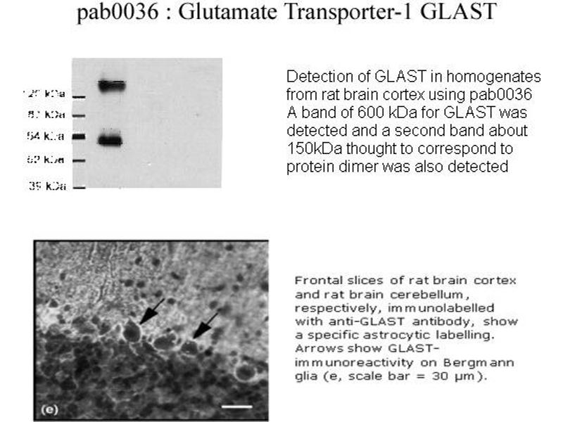 image for anti-Solute Carrier Family 1 (Glial High Affinity Glutamate Transporter), Member 3 (SLC1A3) (C-Term) antibody (ABIN346977)