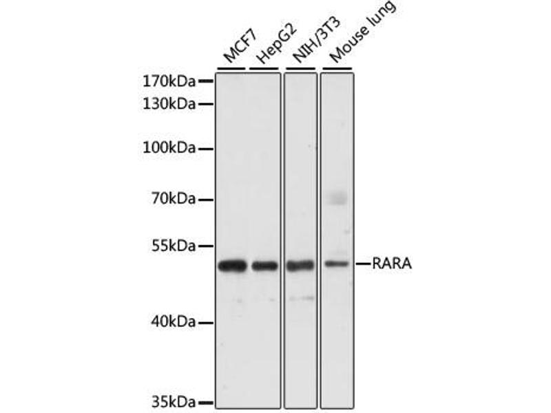 Image no. 1 for anti-Retinoic Acid Receptor, alpha (RARA) antibody (ABIN6566584)