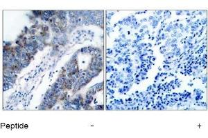 Image no. 1 for anti-Mitogen-Activated Protein Kinase Kinase Kinase 5 (MAP3K5) (Ser83) antibody (ABIN197310)