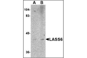 Image no. 2 for anti-Ceramide Synthase 6 (CERS6) (N-Term) antibody (ABIN500144)