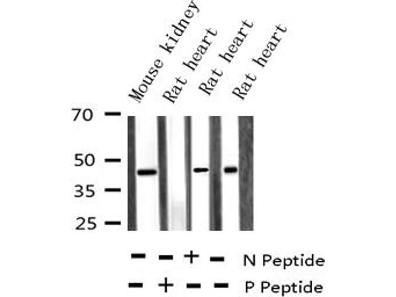 Western Blotting (WB) image for anti-Mitogen-Activated Protein Kinase Kinase 3 (MAP2K3) (pSer189) antibody (ABIN6256178)