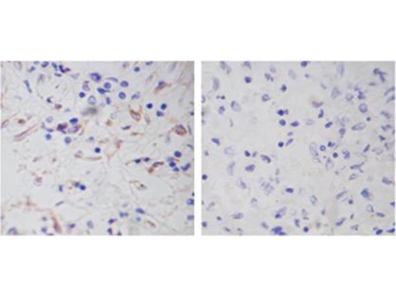 Immunohistochemistry (IHC) image for anti-Vimentin antibody (VIM) (AA 400-500) (ABIN1574034)