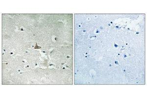 Immunohistochemistry (IHC) image for anti-TRKB antibody (Neurotrophic Tyrosine Kinase, Receptor, Type 2) (C-Term) (ABIN1847660)