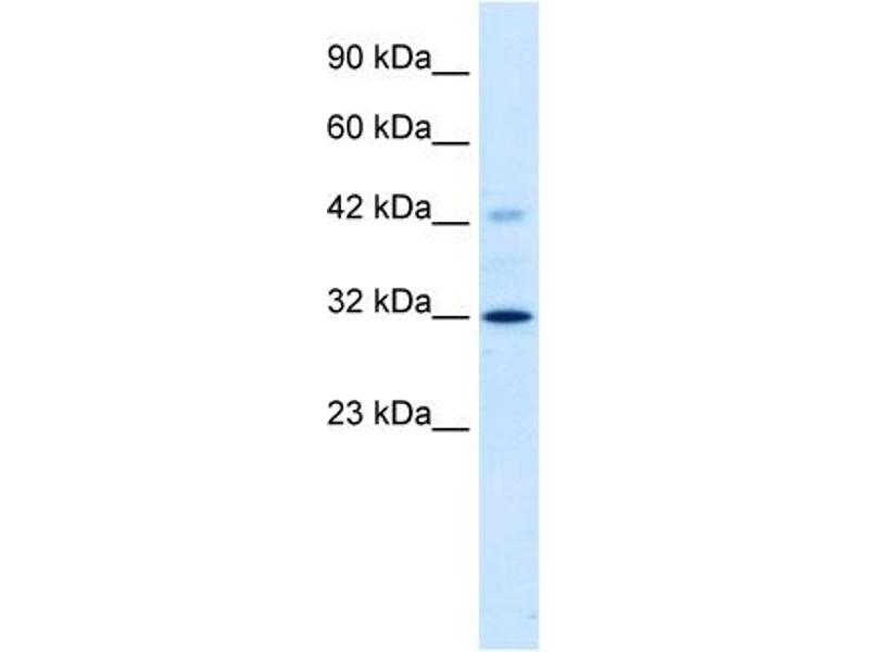 Western Blotting (WB) image for anti-Voltage-Dependent Anion Channel 1 (VDAC1) (C-Term) antibody (ABIN183134)