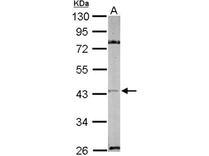 Western Blotting (WB) image for anti-MAPK9 antibody (Mitogen-Activated Protein Kinase 9) (ABIN441665)