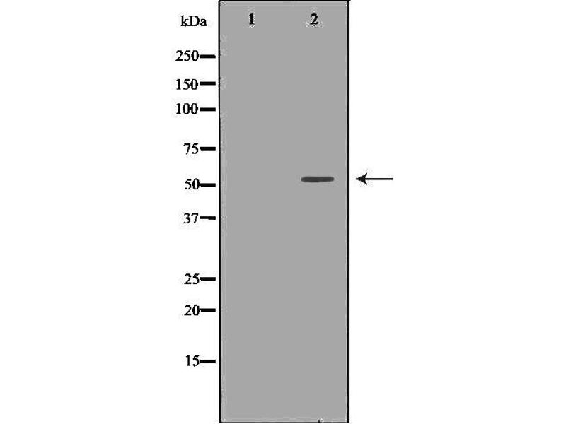 Western Blotting (WB) image for anti-TNF Receptor-Associated Factor 2 (TRAF2) antibody (ABIN6265705)