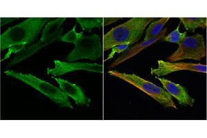 Immunofluorescence (IF) image for anti-Stathmin 1 antibody (STMN1) (C-Term) (ABIN2855912)