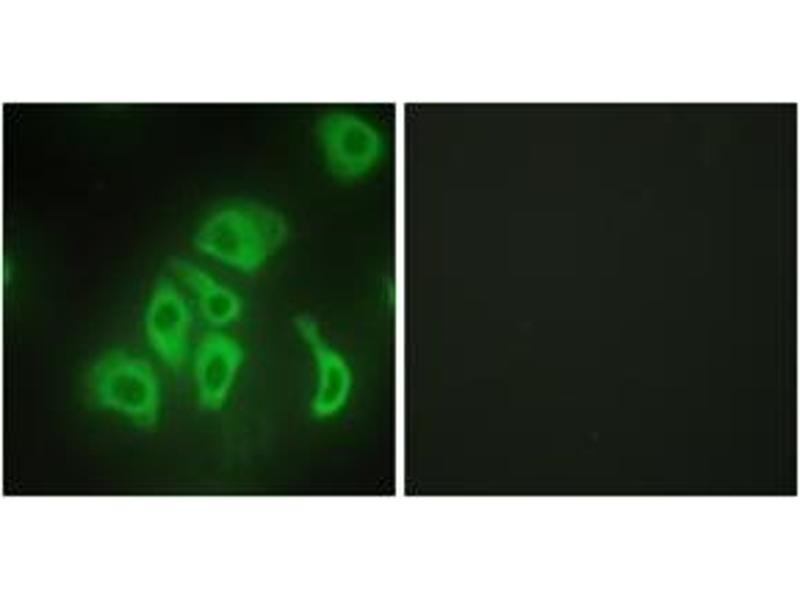 Immunofluorescence (IF) image for anti-Tumor Necrosis Factor antibody (TNF) (ABIN1533583)