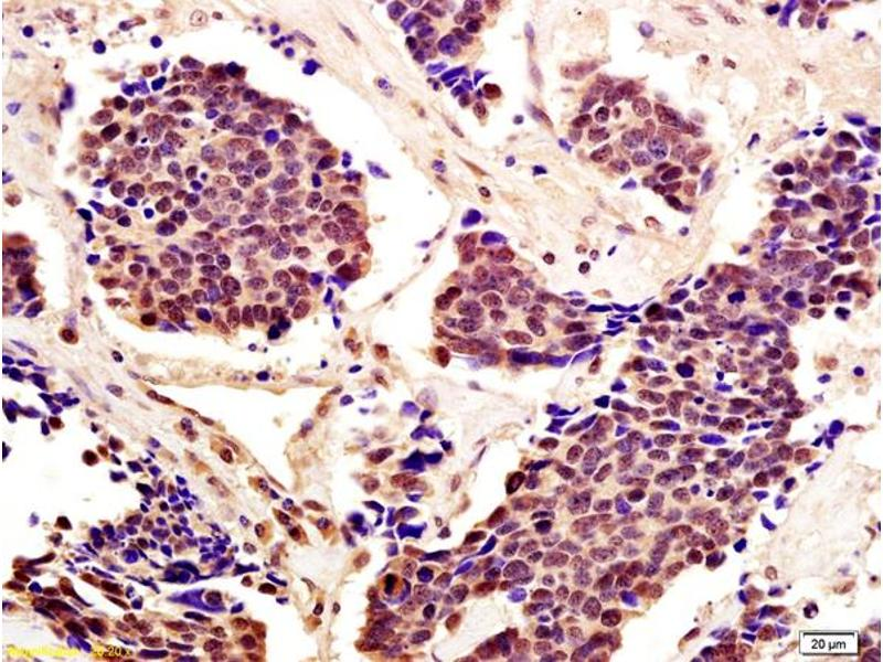 Immunohistochemistry (IHC) image for anti-STAT5A antibody (Signal Transducer and Activator of Transcription 5A) (AA 70-120) (ABIN738276)