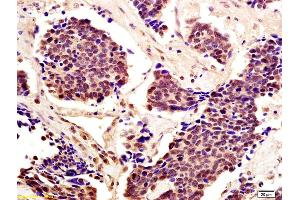 Immunohistochemistry (IHC) image for anti-Signal Transducer and Activator of Transcription 5A (STAT5A) (AA 70-120) antibody (ABIN738276)
