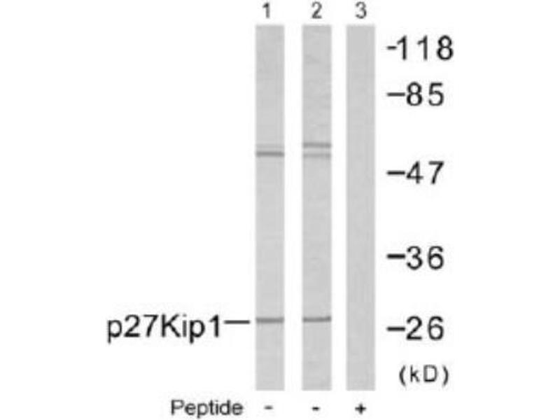 Western Blotting (WB) image for anti-Cyclin-Dependent Kinase Inhibitor 1B (p27, Kip1) (CDKN1B) antibody (ABIN4342483)