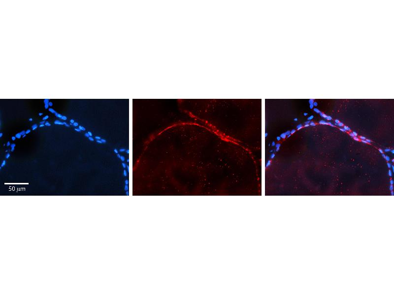 Immunohistochemistry (IHC) image for anti-V-Akt Murine Thymoma Viral Oncogene Homolog 2 (AKT2) (Middle Region) antibody (ABIN2779323)