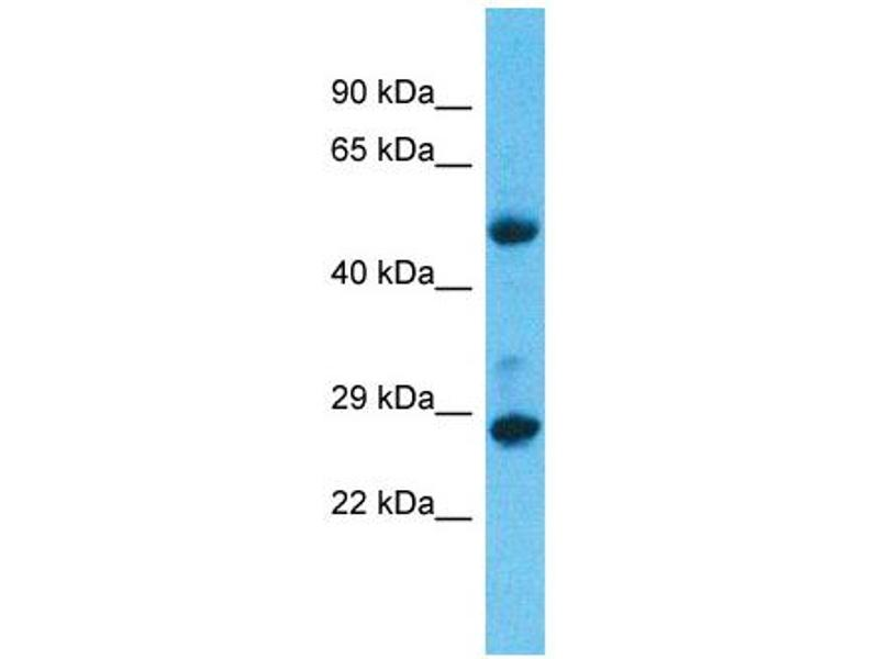 Western Blotting (WB) image for anti-Mediator Complex Subunit 6 (MED6) (C-Term) antibody (ABIN2780688)
