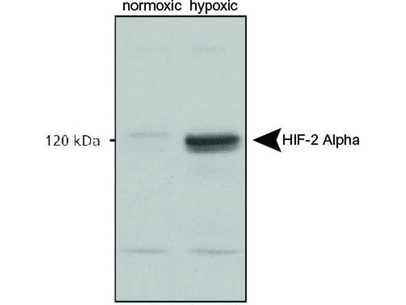 Western Blotting (WB) image for anti-EPAS1 antibody (Endothelial PAS Domain Protein 1) (C-Term) (Biotin) (ABIN249868)