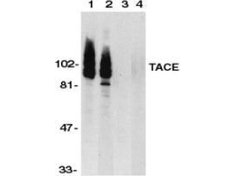 Western Blotting (WB) image for anti-ADAM17 antibody (ADAM Metallopeptidase Domain 17) (C-Term) (ABIN500861)