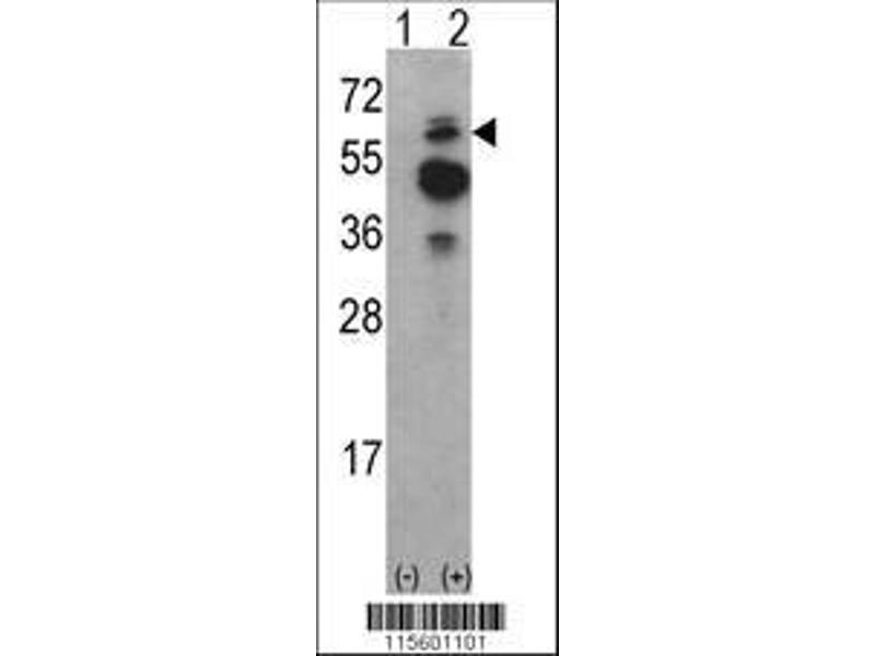 Western Blotting (WB) image for anti-tyrosine Kinase, Non-Receptor, 2 (TNK2) (AA 10-39), (N-Term) antibody (ABIN392082)
