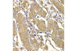 Image no. 2 for anti-Ras Protein-Specific Guanine Nucleotide-Releasing Factor 1 (RASGRF1) antibody (ABIN6570814)